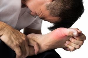 Photo of Top 11 Thực phẩm đẩy lùi bệnh gout hiệu quả nhất