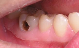 Photo of Top 6 Thực phẩm dễ gây sâu răng bạn nên biết