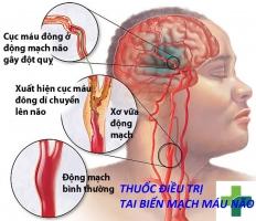 Photo of Top 9 Thuốc điều trị tai biến mạch máu não hiệu quả nhất